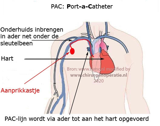 Port a Catheter chemo