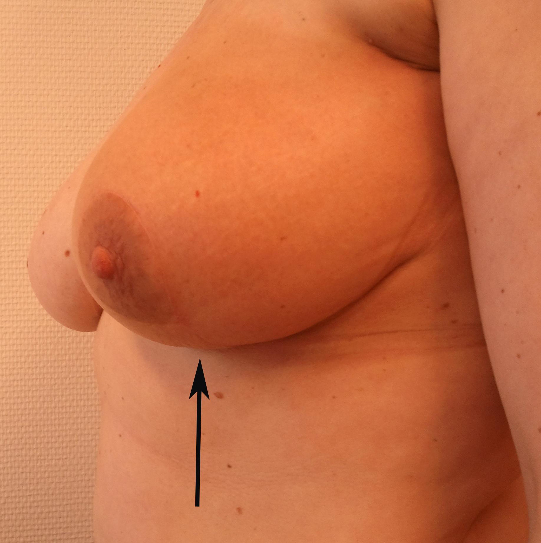 Oncoplastisch_mammareductie2