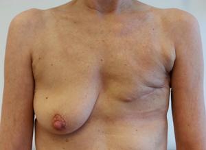 borstamputatie1