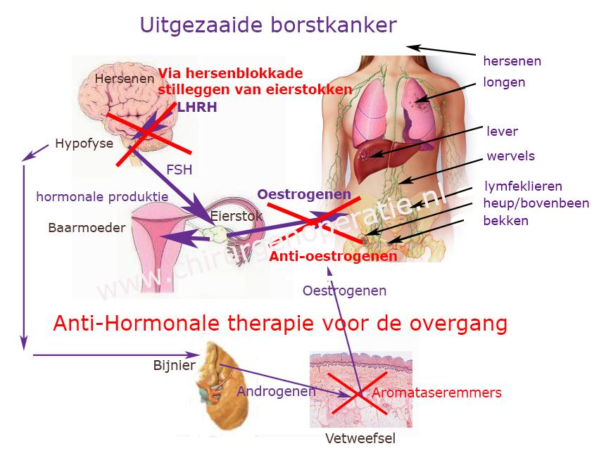 hormoontherapie_uitgezaaide_borstkanker_voor_overgang