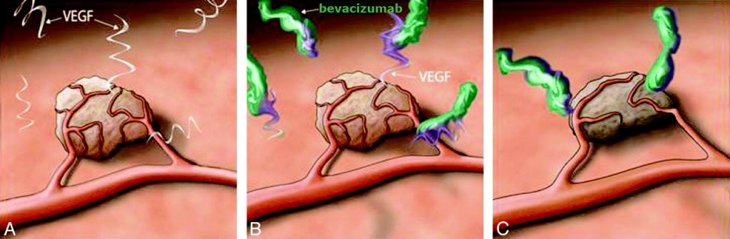 bevacizumab blocking VEGF
