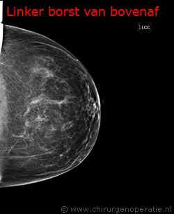 borstfoto van boven af