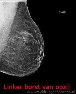 borstfoto van opzij