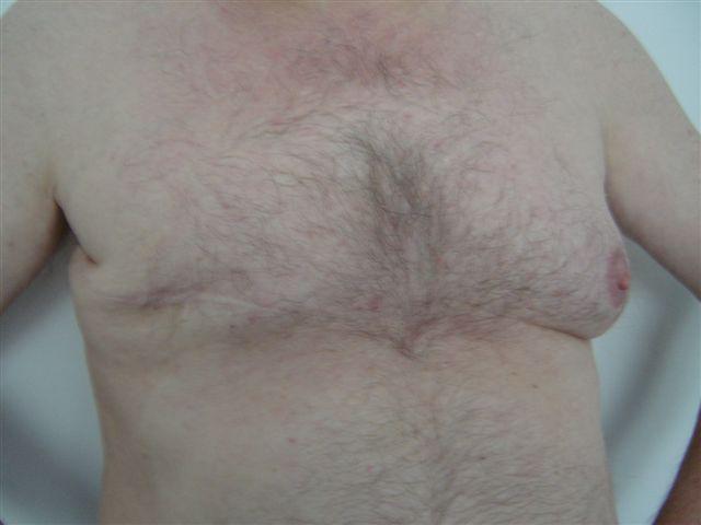 borstkanker_man_amputatie