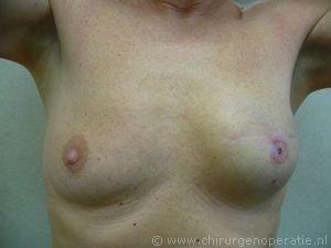 borstreconstructie