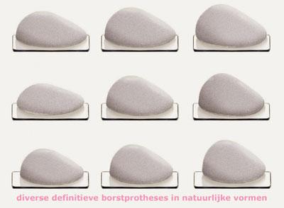 definitieve borstprotheses