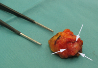 fibroadenoom_operatie2