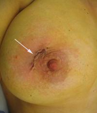 fibroadenoom_operatie3