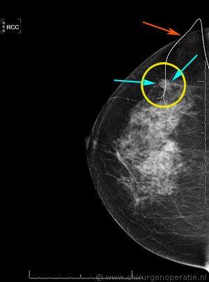 mammolacalisatie