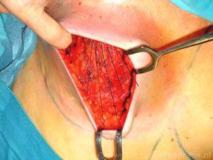 na excisie borstklier