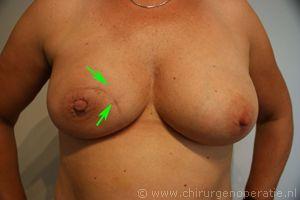 Oncoplastiek