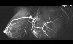 MRI mammogram 3D