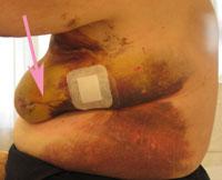 postoperatief hematoom