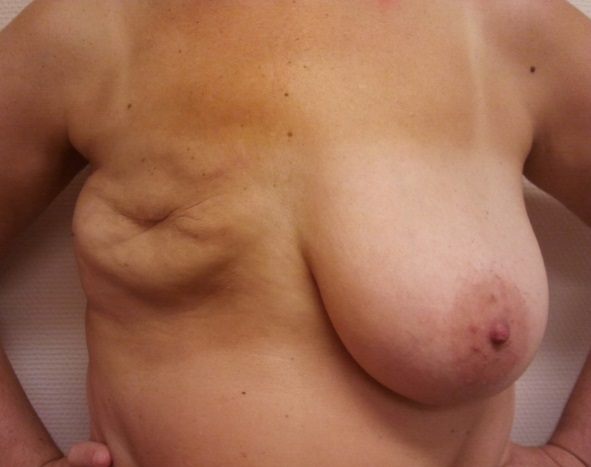 skinsparing_mastectomy1