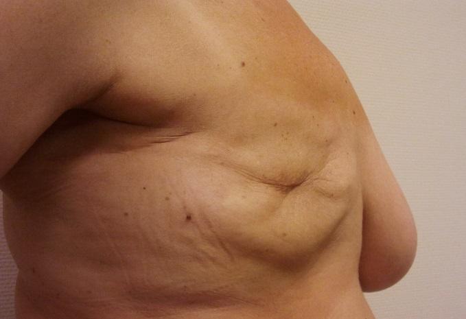 skinsparing_mastectomy2
