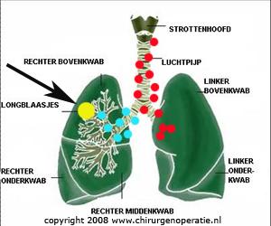 lymfeklieruitzaaiingen_longkanker