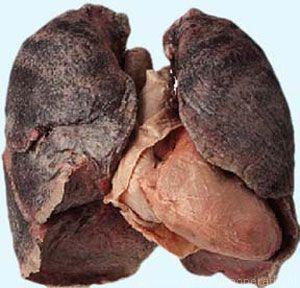 rokerslongen