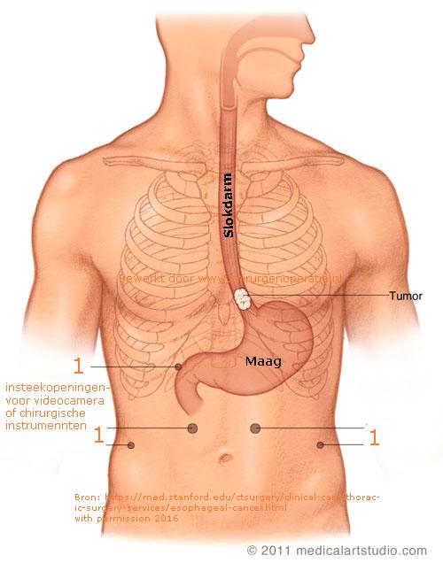 buismaag_laparoscopie
