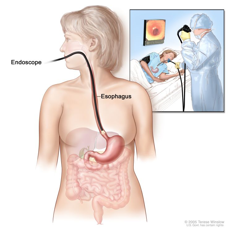 endoscopie_oesophagus
