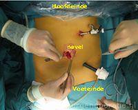 kijkoperatie blinde darm