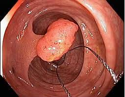 poliepectomie_endoscopie3