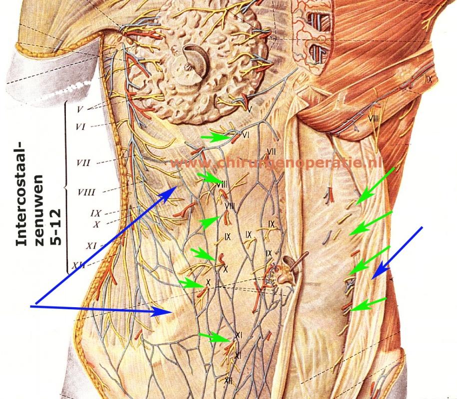 Buikwandpijn ACNES  u2022 Chirurg en Operatie