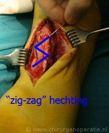 peeshechting2