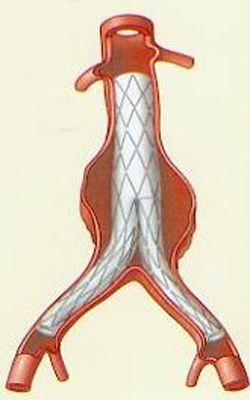endoproth